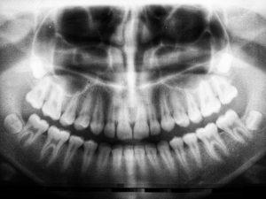 umanoide 617690 unsplash 300x225 - Cómo llegar a ser auxiliar dentista
